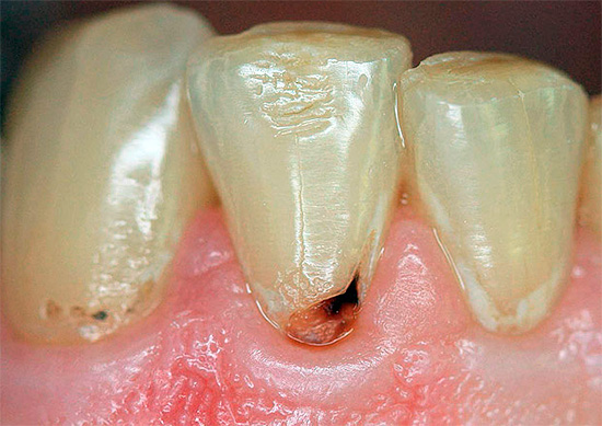 Cervical caries